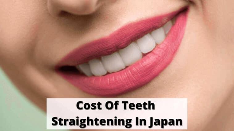 Cost Of Teeth Straightening In Japan