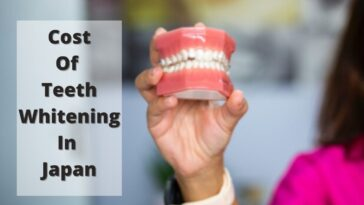 Cost Of Teeth Whitening in Japan