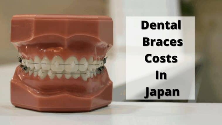 日本的牙套費用