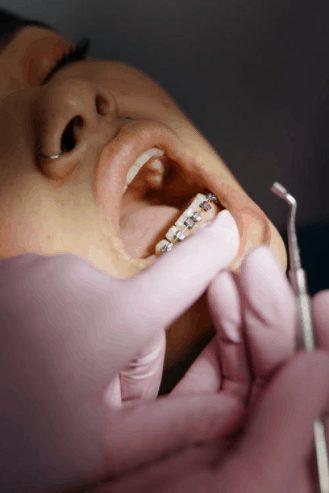 braces adjustment in japan