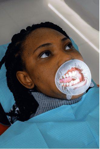 dental braces near tokyo