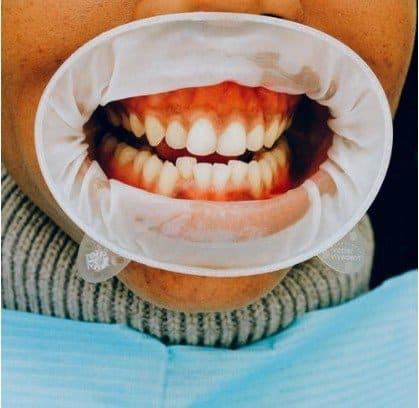 dentures in Japan