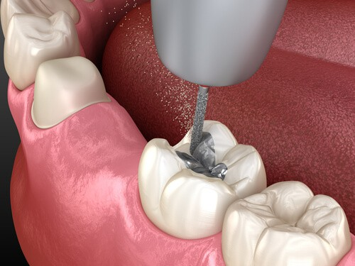 日本的牙科填充物