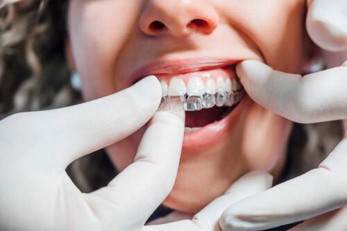 braces cost in Japan