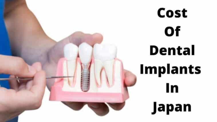 日本種植牙的費用 (1)
